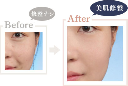 美肌修整 Before After